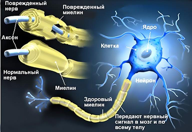 http://i4.imageban.ru/out/2017/02/28/1924f9462fc7b092369630b16f1e2b83.jpg