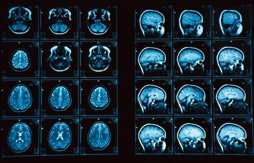 Преимущества и стоимость МРТ головного мозга