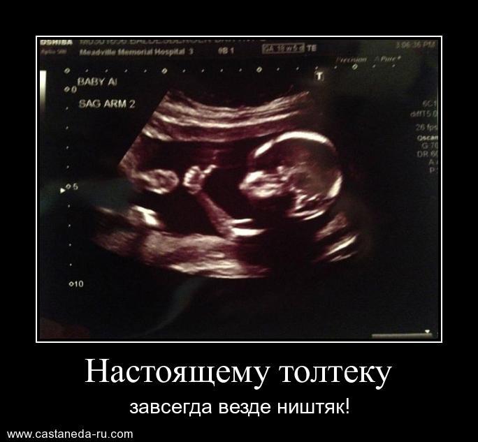 https://i4.imageban.ru/out/2021/07/17/e4f4b996727ba32ca39a65d0528d30f2.jpg